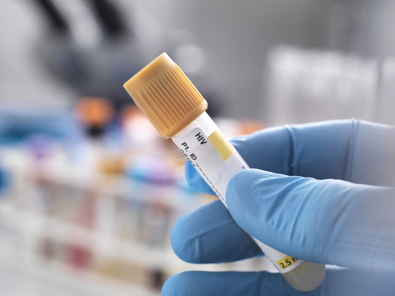 Medical technician preparing a human sample for HIV testing