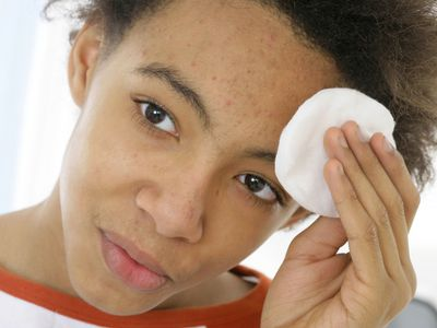 Teen cleaning face with cotton pad.