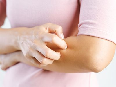 a woman scratching her arm