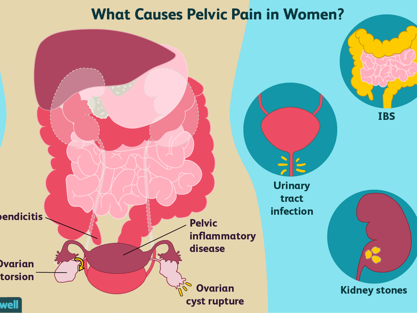 Pelvic Pain In Women Causes And Treatment