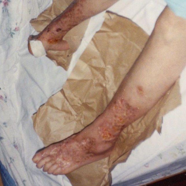 tissue necrosis