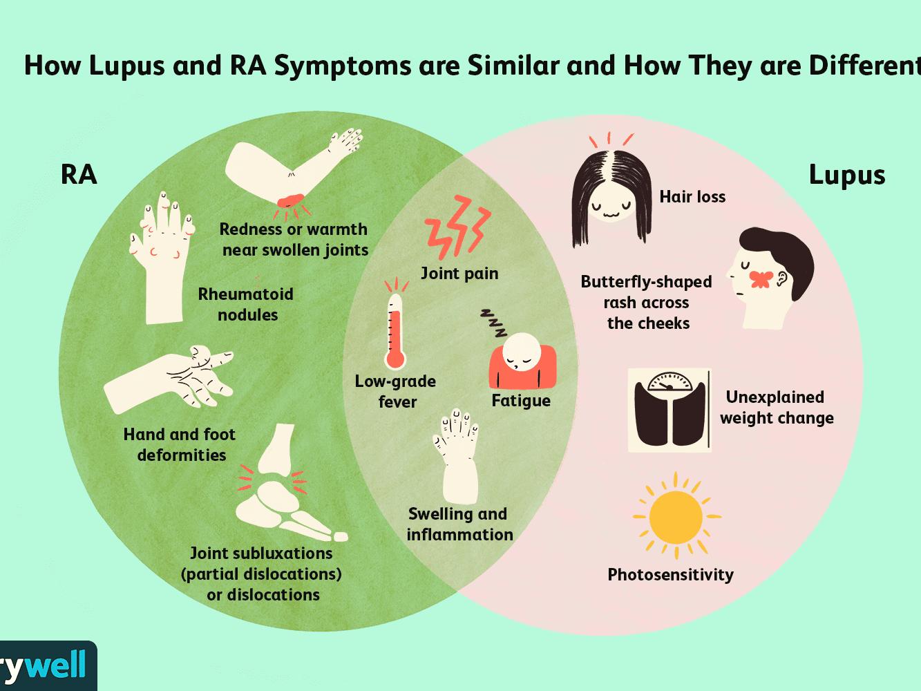 Differences Between Rheumatoid Arthritis And Lupus