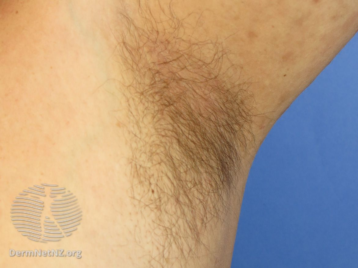 normal axillary hair