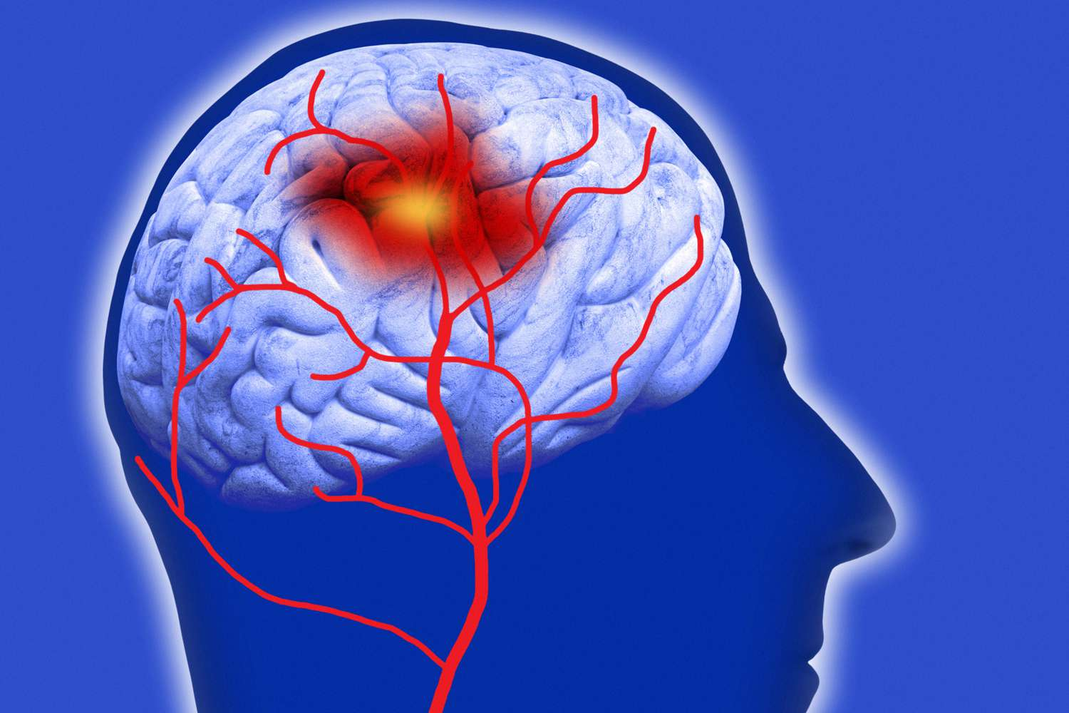 Illustration of the effects of a stroke in the brain