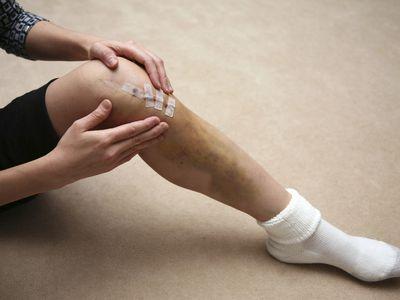 knee surgery scar