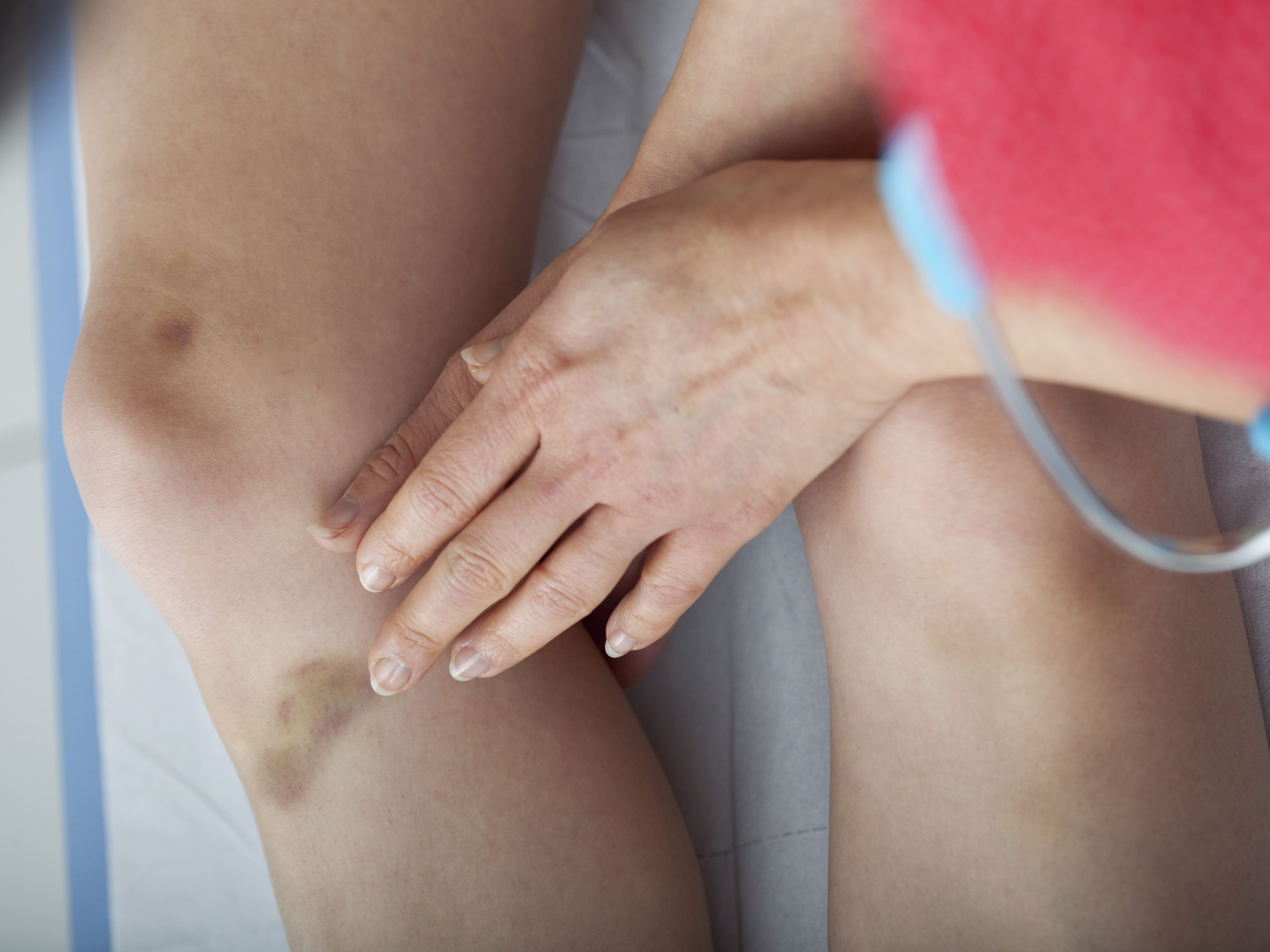 What Is the Difference Between Bruises and Hematomas?