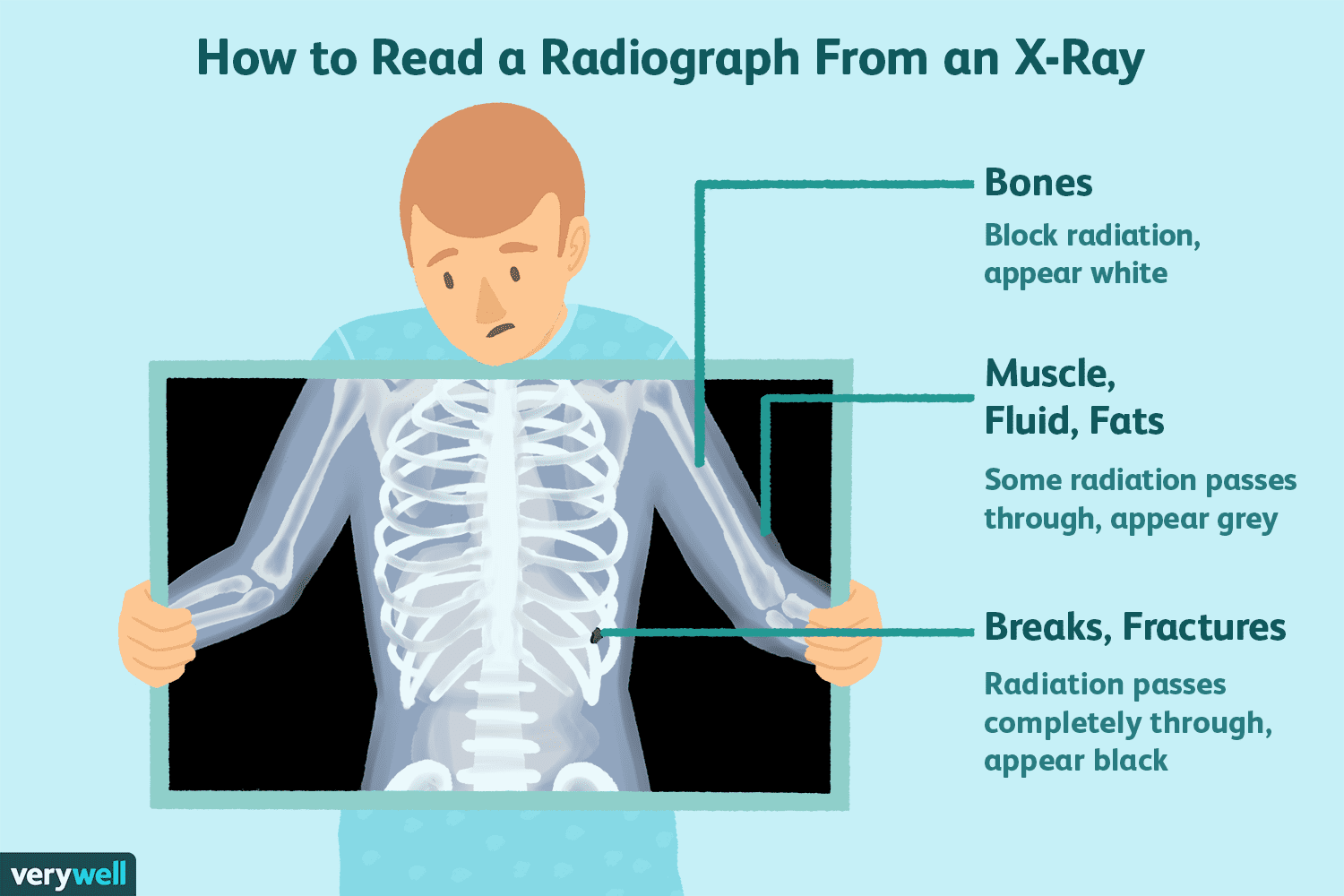 X-Rays: Uses, Procedure, Results