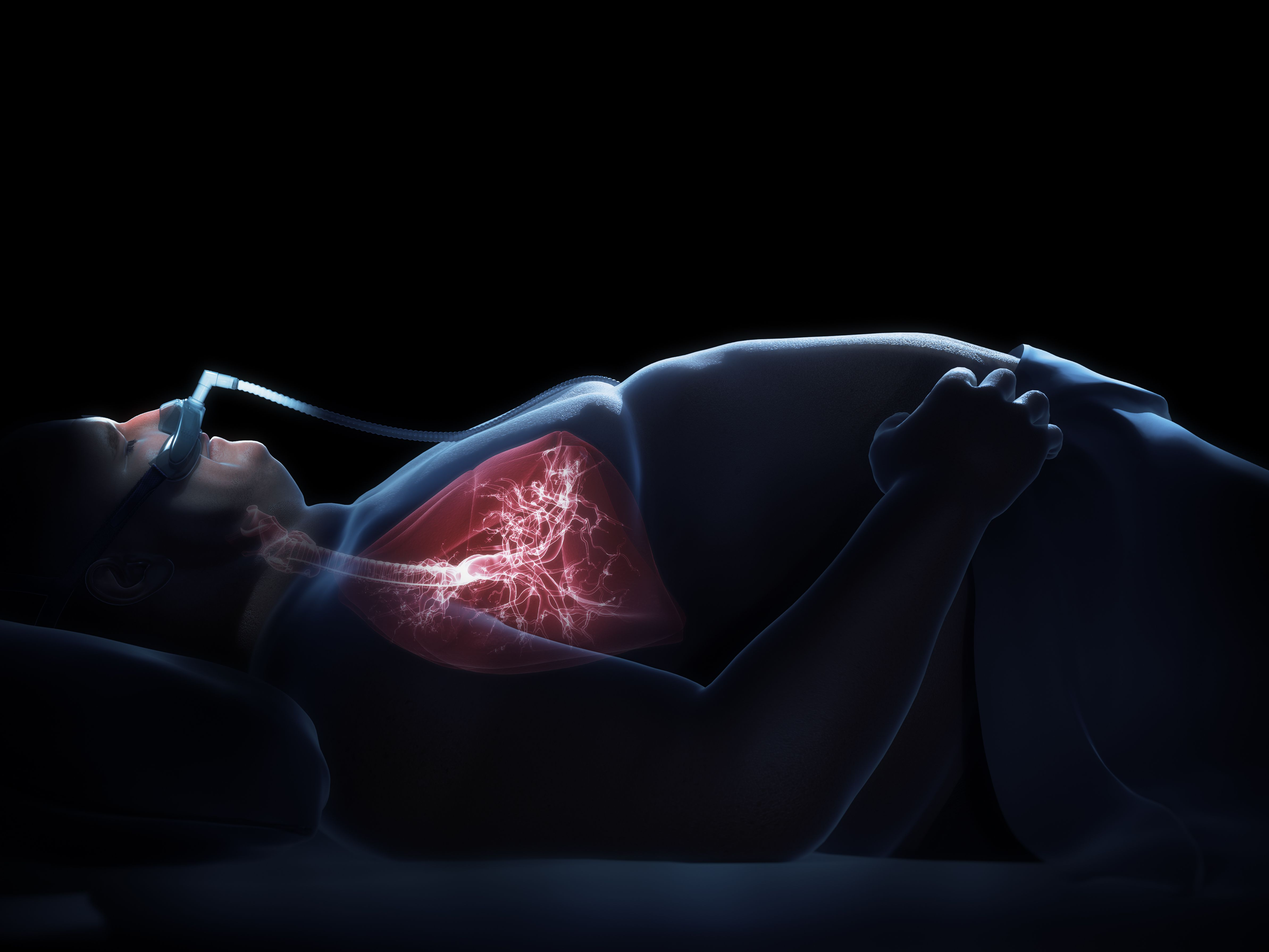Does Sleep Apnea Go Away? Risk Factors and Prognosis