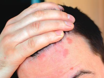 Man shows red psoriasis on his forehead