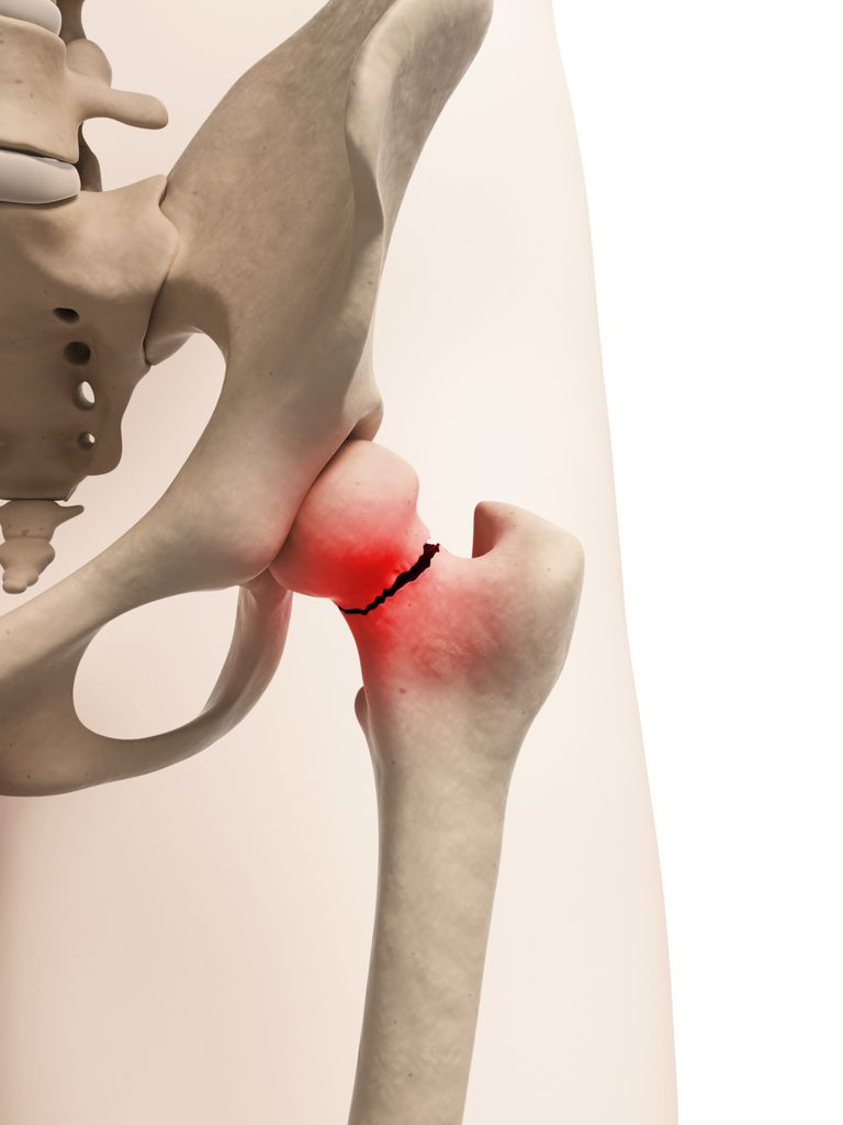 Femoral Neck Fracture Fracture Of The Ball Of Hip