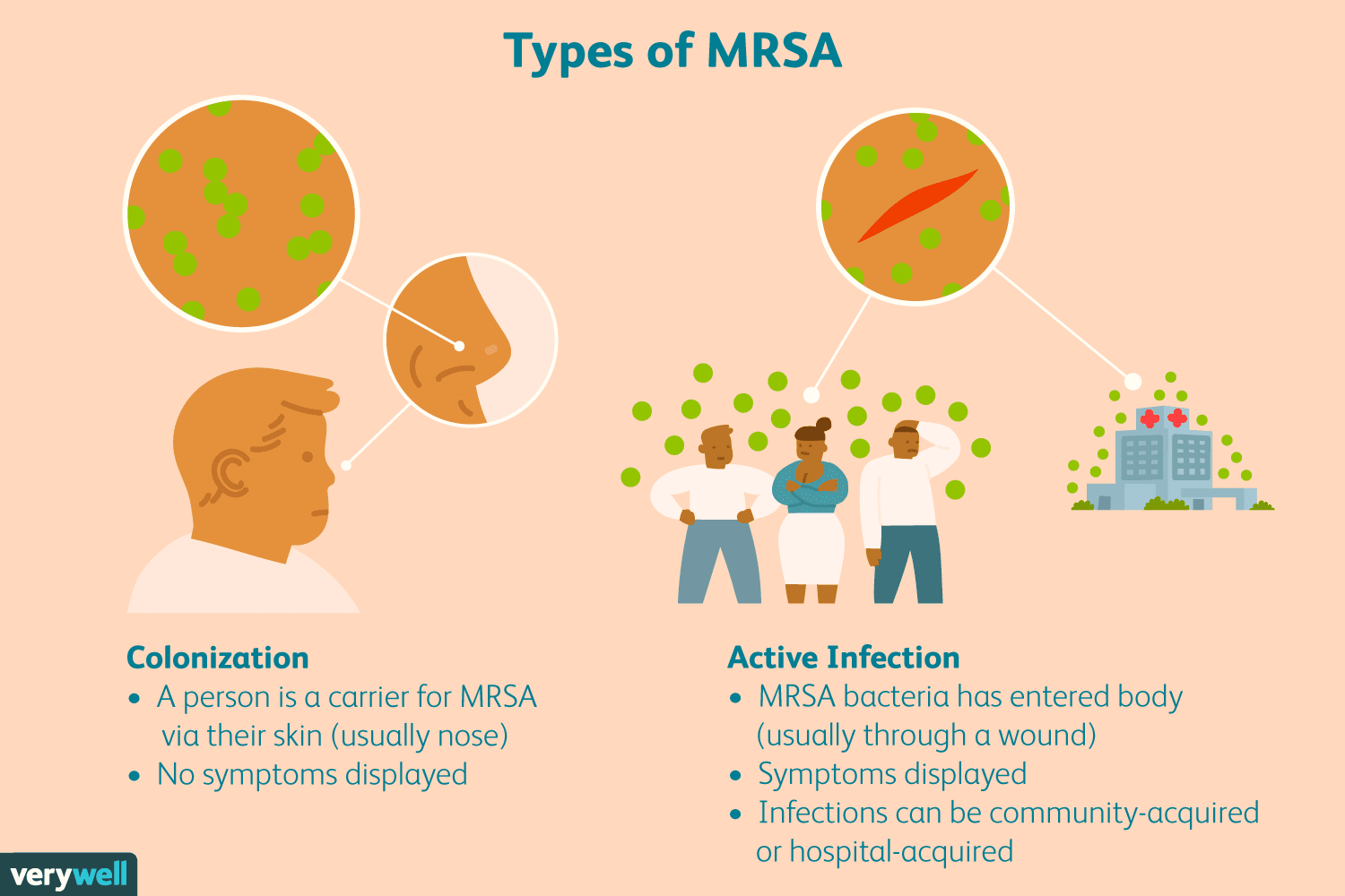 first signs of mrsa in nose