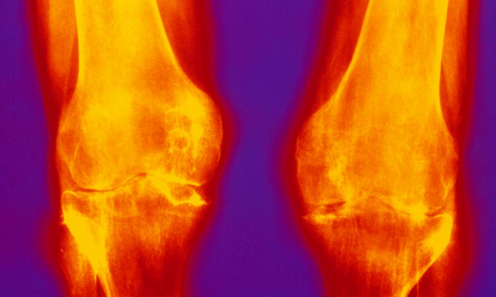 Inflammation of the knees.