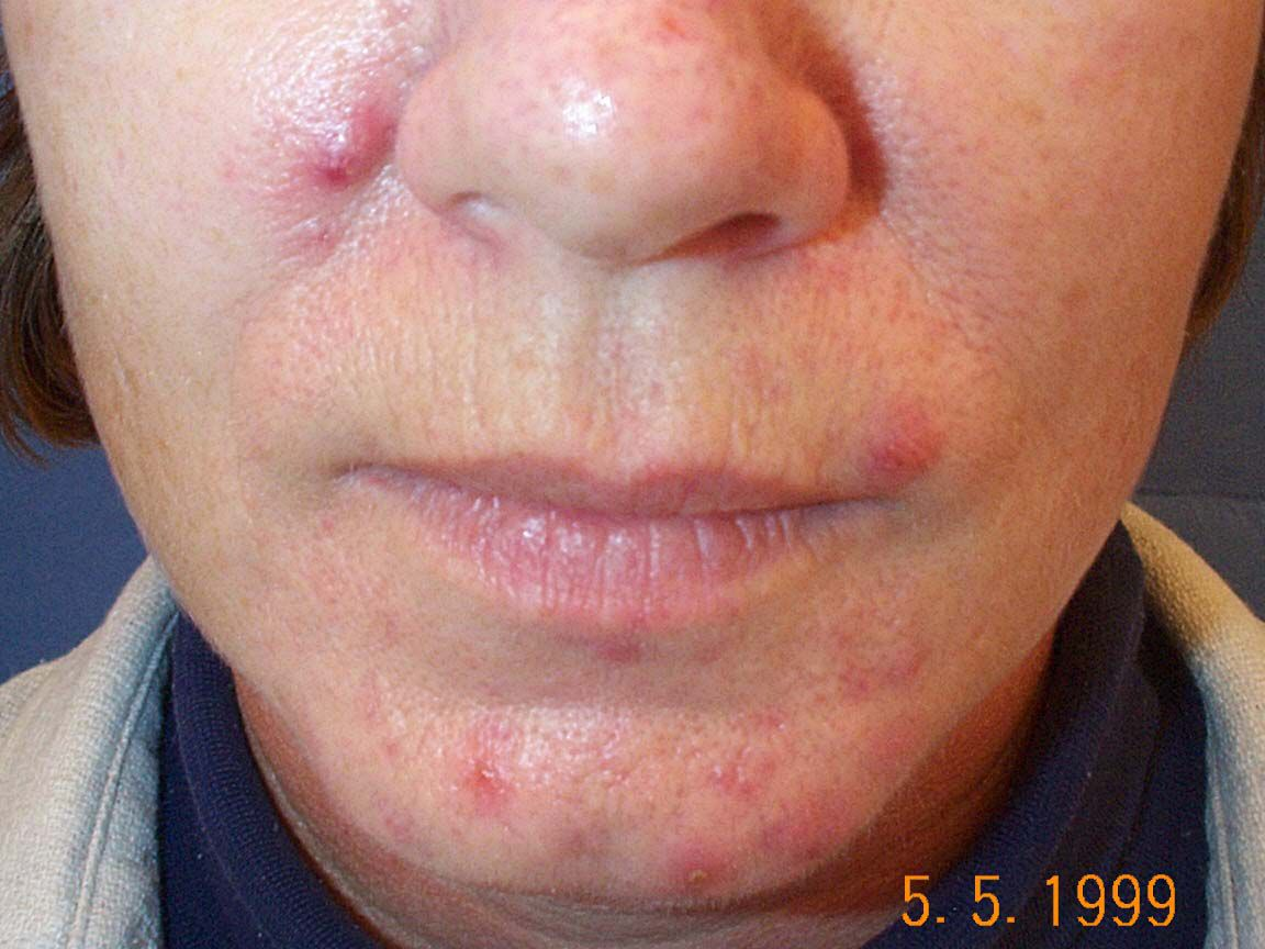 What To Expect From Retin A Acne Treatment
