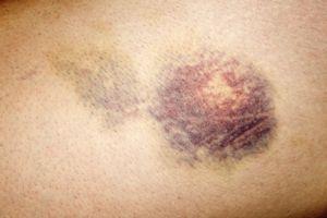 Close-up of bruised skin on human leg
