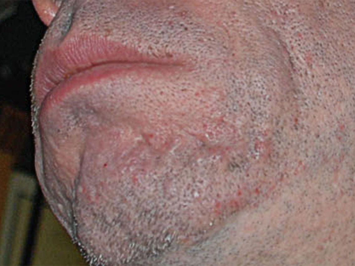 Types of Acne Scars and How To Treat Them