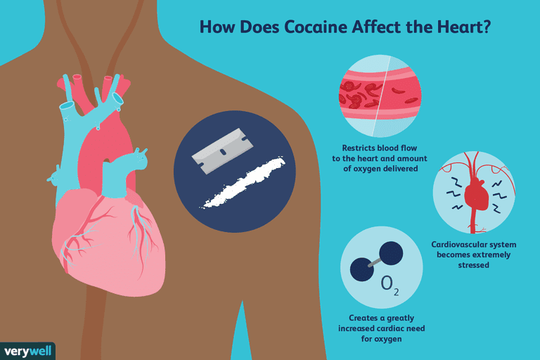 Cocaine and its effects on the heart