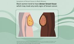 symptoms of breast cancer on Black women