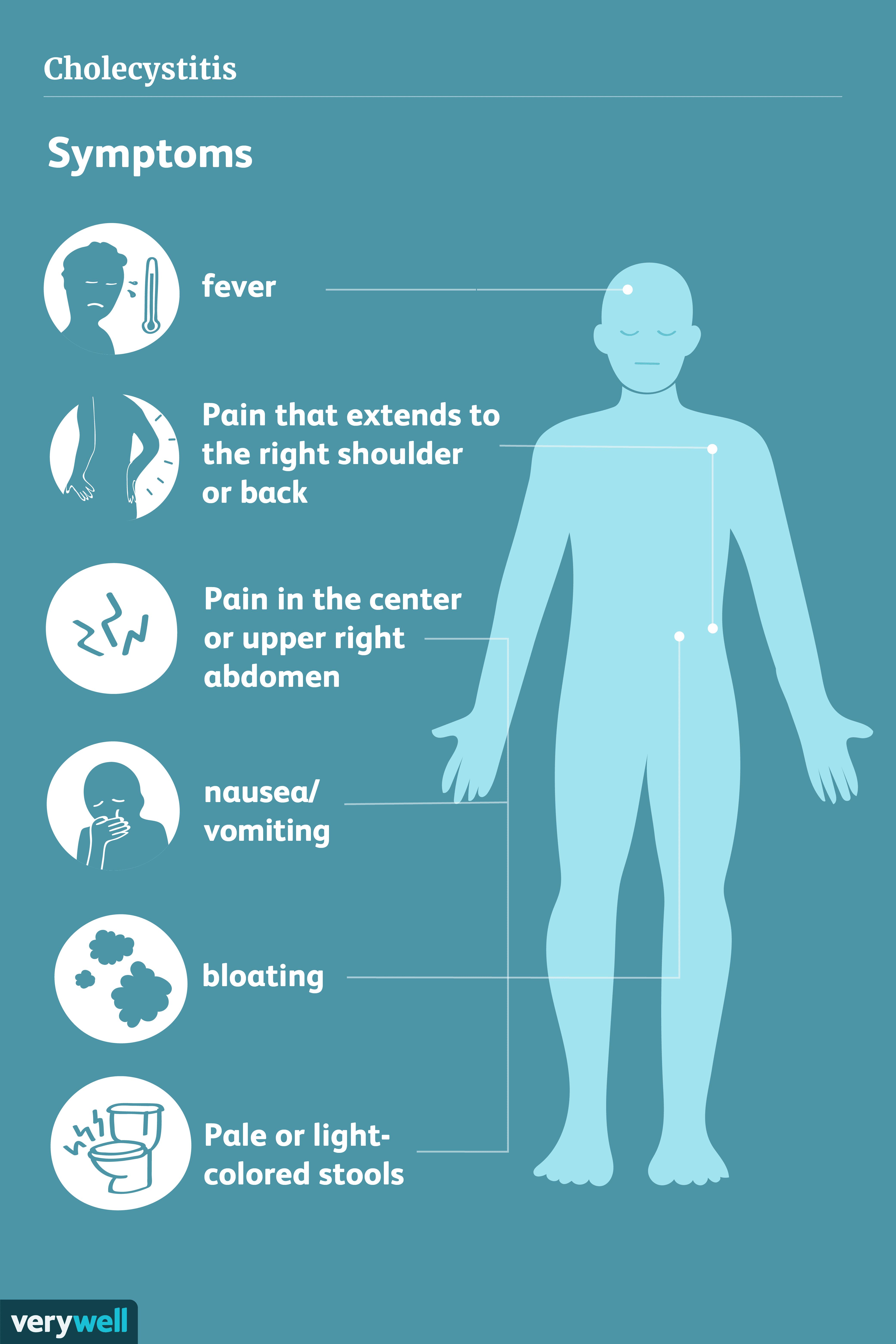 Symptoms of cholecystitis