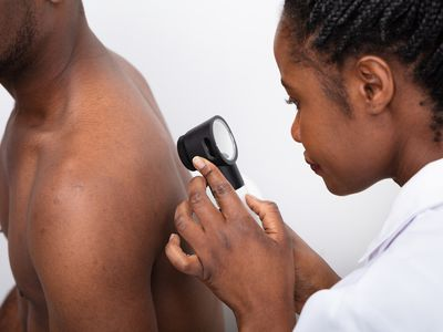 Doctor checking for basal cell carcinoma