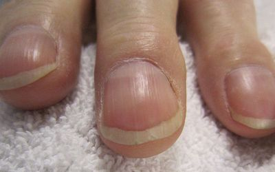 clubbed fingers due to an underlying medical condition such as lung cancer