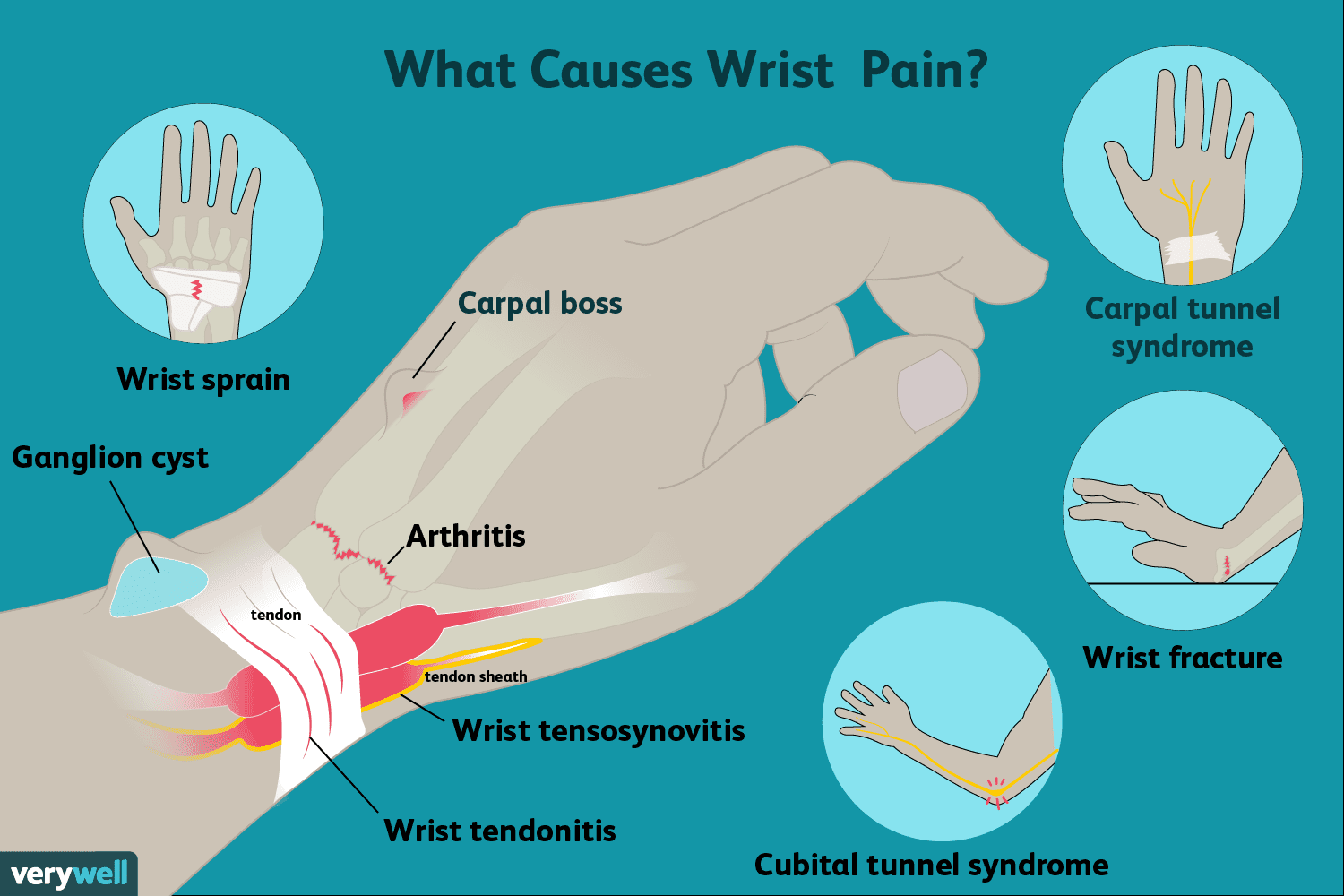 Wrist Pain Causes Treatment And When To See A Doctor
