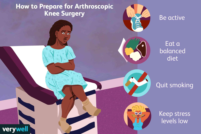 How to Prepare for Arthroscopic Knee Surgery