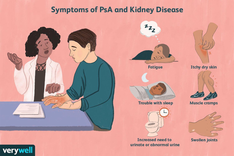 Symptoms of PsA Kidney Disease