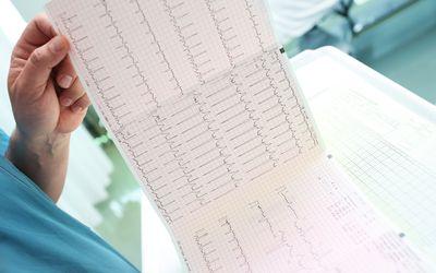 Doctor studying ECG chart