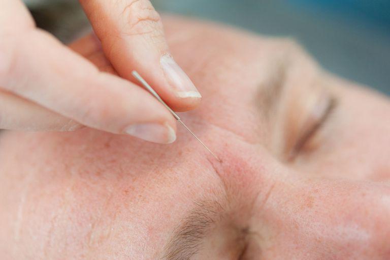 Older man getting aupuncture