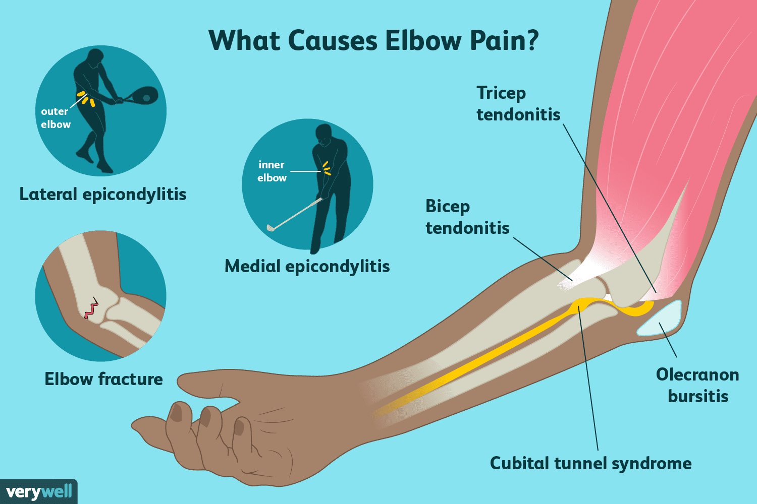 Elbow Pain Causes Treatment And When To See A Doctor