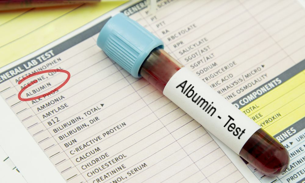 albumin test