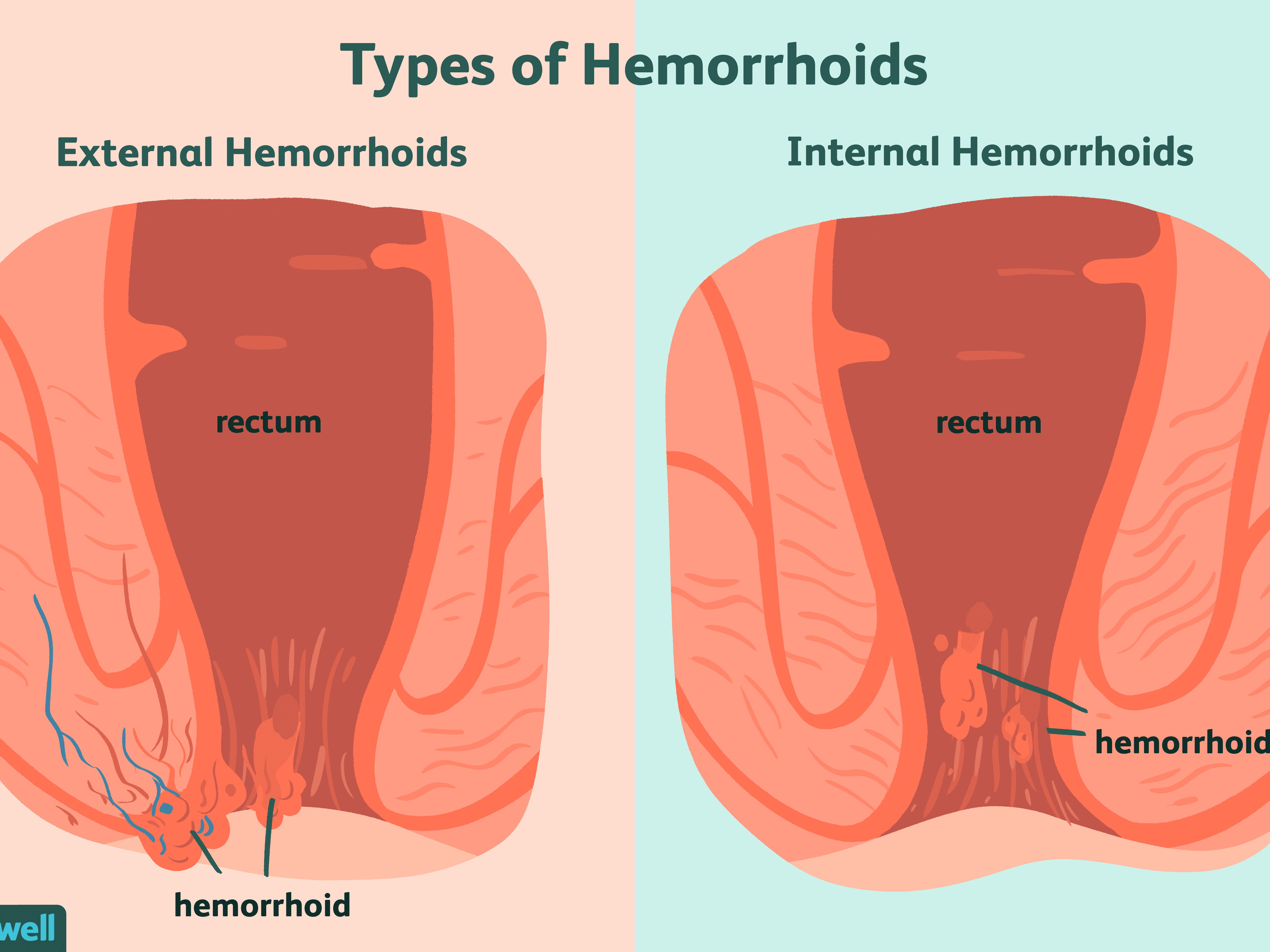 Hemorrhoids Overview And More