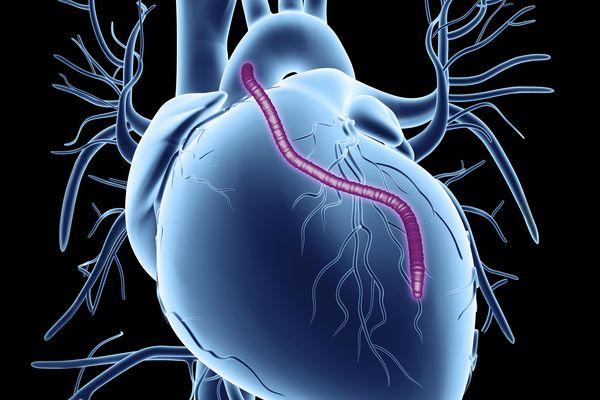 vascular graft in the heart