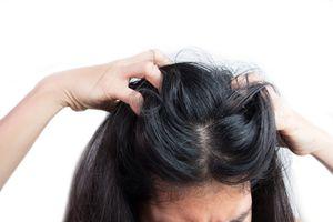 Closeup of a woman scratching her head