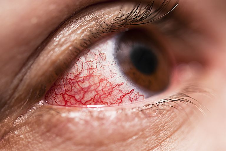 close up of an inflamed eye