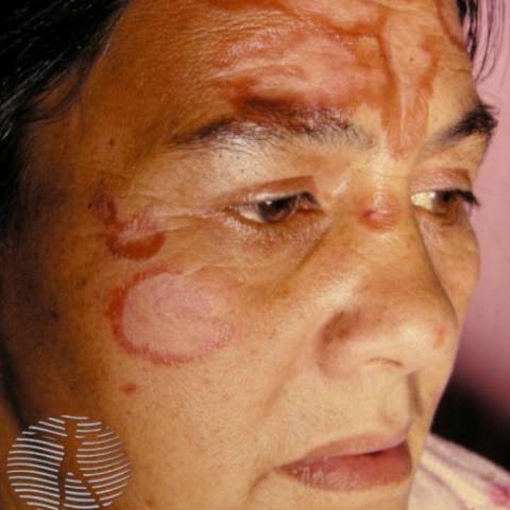 sarcoidosis on face