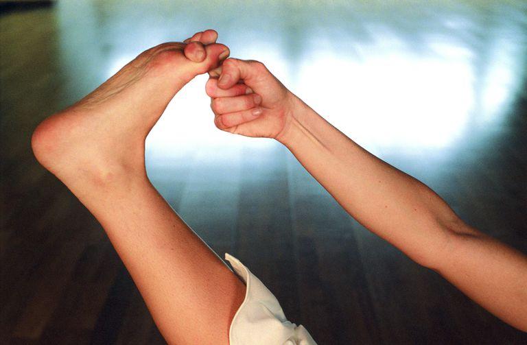 Heel Spurs: Symptoms, Causes, Diagnosis, Treatment