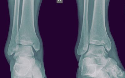 Maisonneuve Fracture of the Ankle