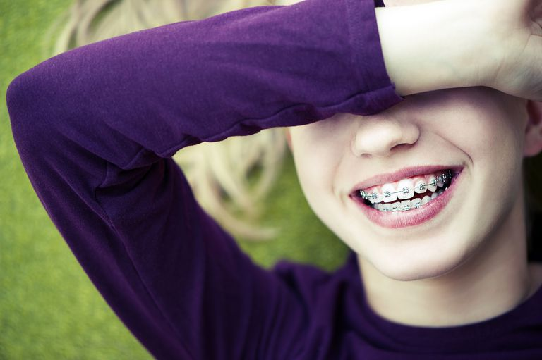 Should You Fear Orthodontic Braces?