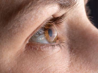 Macro eye photo. Keratoconus - eye disease, thinning of the cornea in the form of a cone.