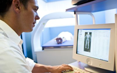What You Need to Know About Osteopenia