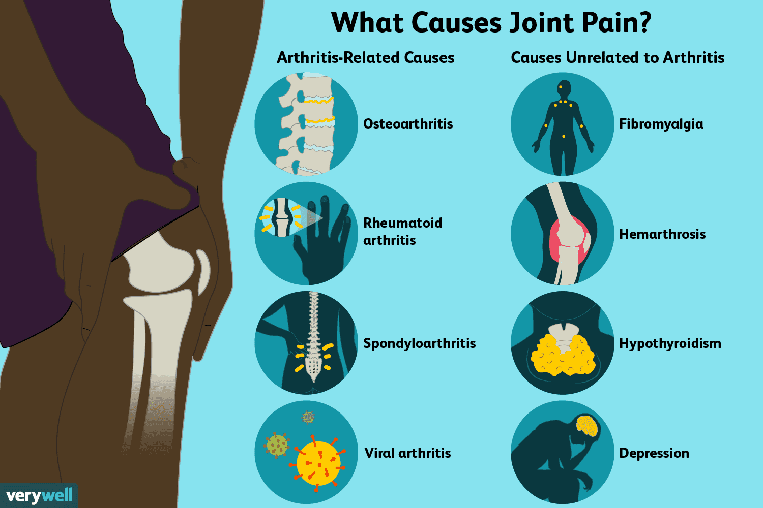 Joint Pain: Causes, Treatment, and When to See a Doctor