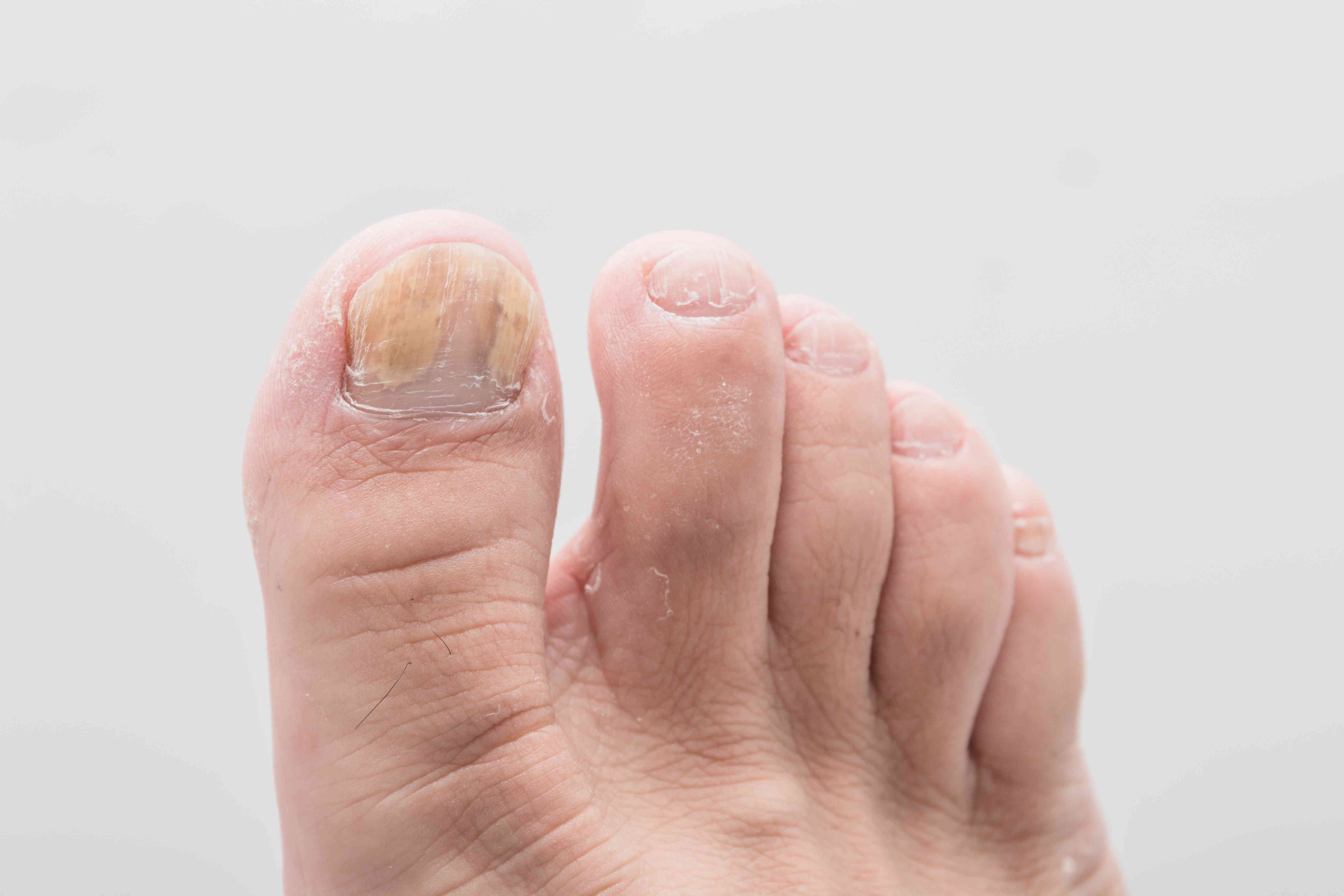 An Overview Of Common Toenail Problems