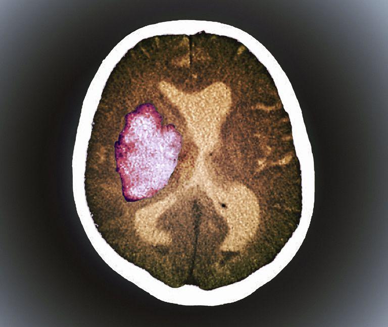 Brain scan of stroke
