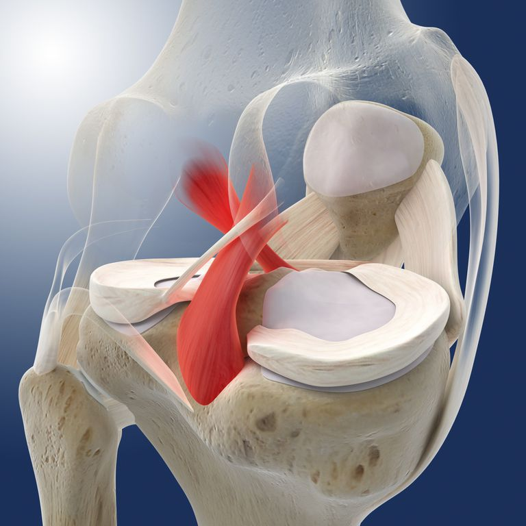 The MCL keeps the knee from bending inward, stabilizing it during motion