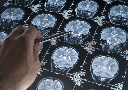 A PET Scan and an algorithm can help predict when Alzheimer's will become severe