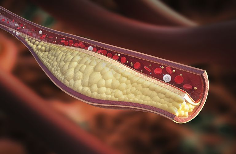 Cancer And The Risk Of Blood Clots