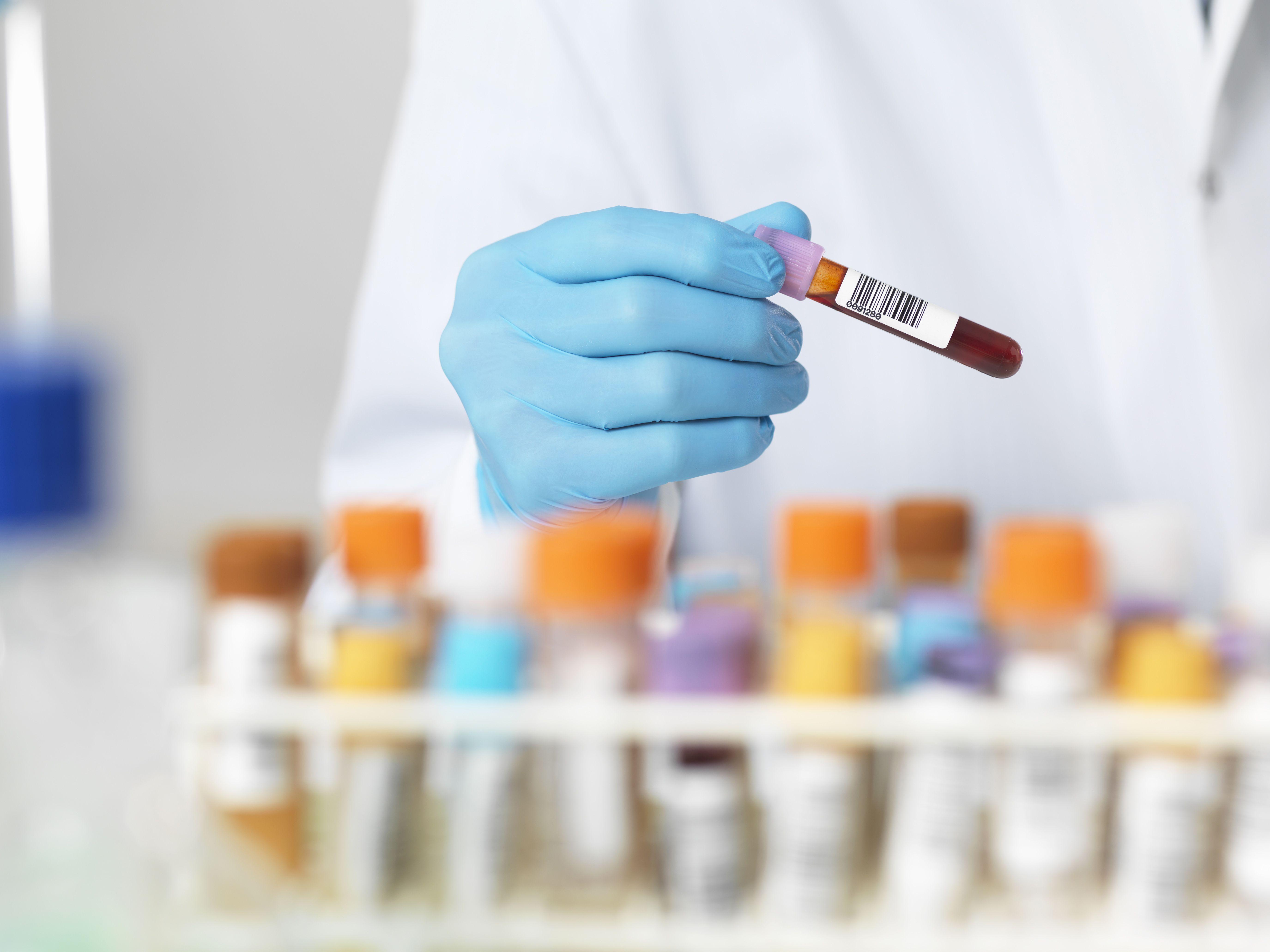 Tcs Medical Test Format on