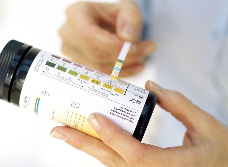 Urine ketone test