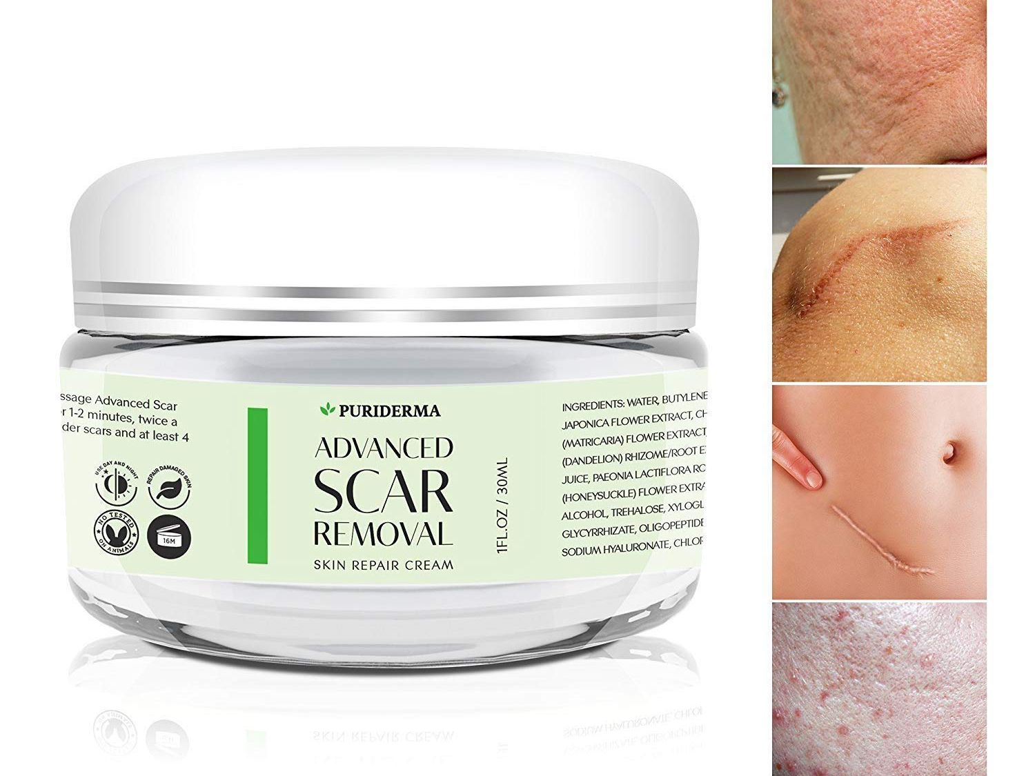 The 7 Best Scar Creams Of 2020